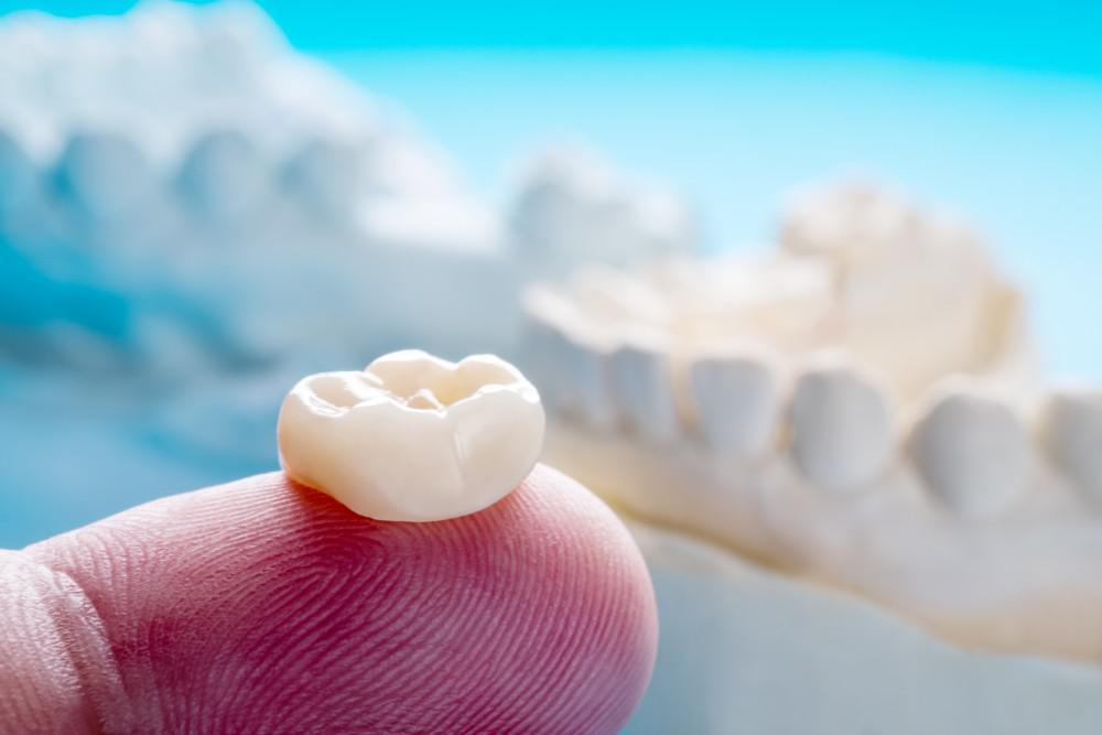 How Crowns and Bridges Preserve Your Smile and Dental Health: David B.  Epstein, DDS & Nikita Vakil, DMD: Dentists