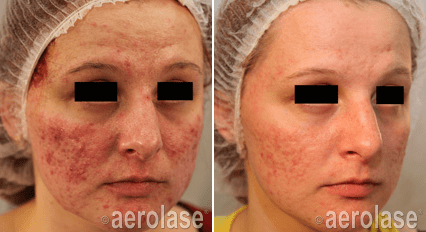 Gallery image about Neolase on Acne