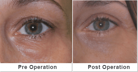 Gallery image about cosmetic eye before and after