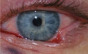 Gallery image about Eyelid Cancer