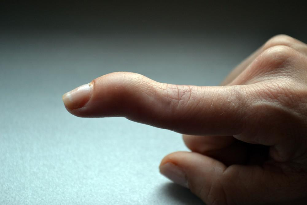 What Is Mallet Finger and How Can I Treat It?: Maryland Orthopedic  Specialists: Orthopedic Surgeons