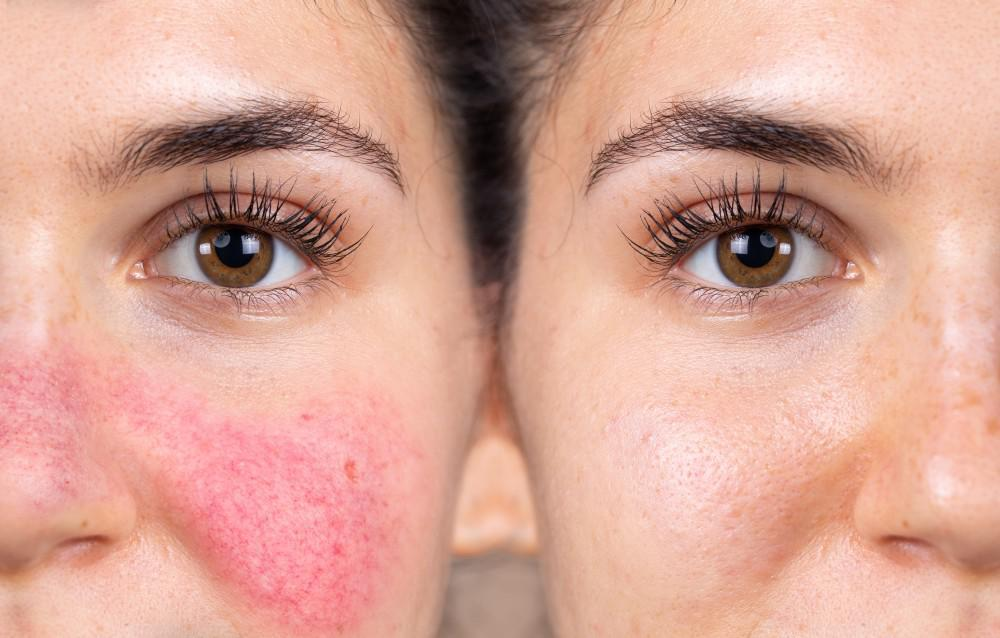 Look For These 5 Common Signs Of Vitiligo Apex Dermatology Skin Care Specialists