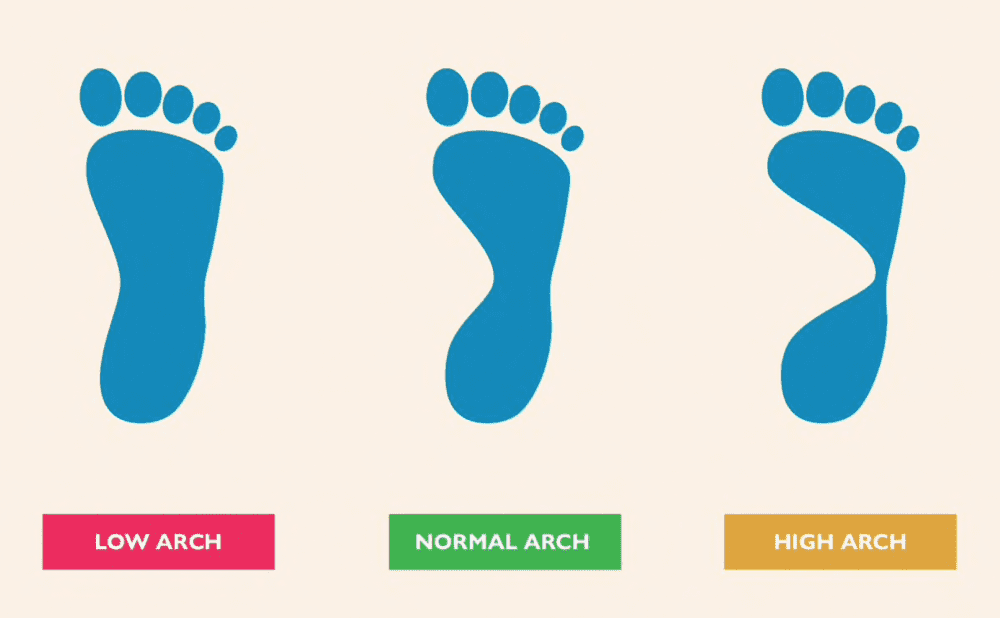 Know your Arch type: Gotham Footcare