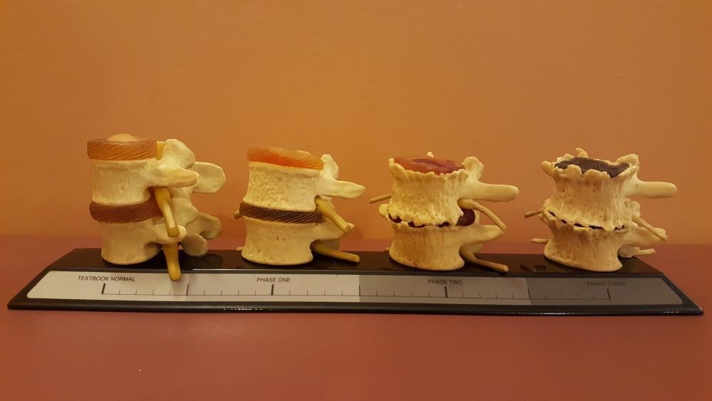 Stages of vertebral degradation