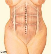 tummy tuck illustration
