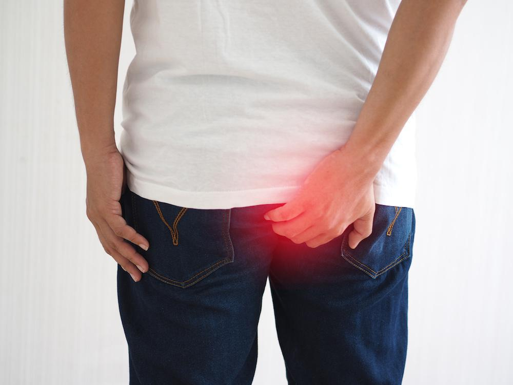 Top Signs of a Thrombosed Hemorrhoid: Betsy F. Clemens, M.D.: Board  Certified Physician