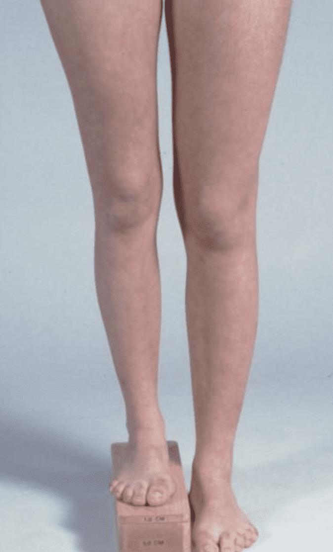 Orthotic Heel Lifts