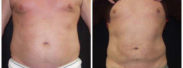 Gallery image about Liposuction
