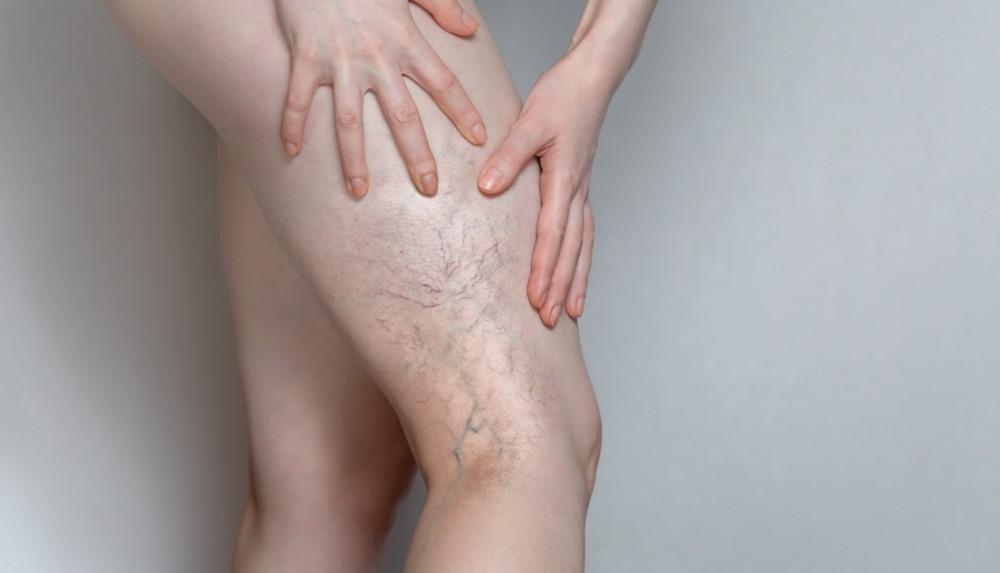 how do you get spider veins