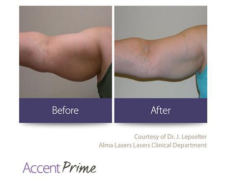 Gallery image about Accent Prime B&A