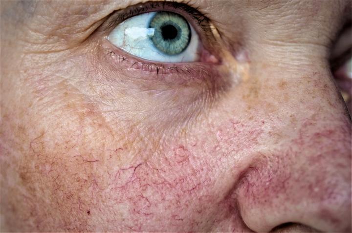 spider veins on cheeks