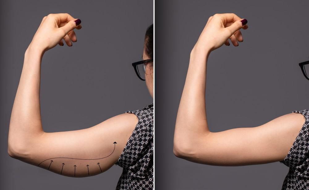 Arm lift before and after