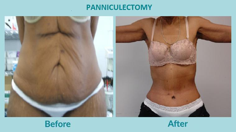 Gallery image about before & after - panniculectomy