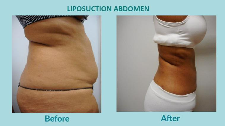 Gallery image about BEFORE & AFTER - LIPOSUCTION ABDOMEN
