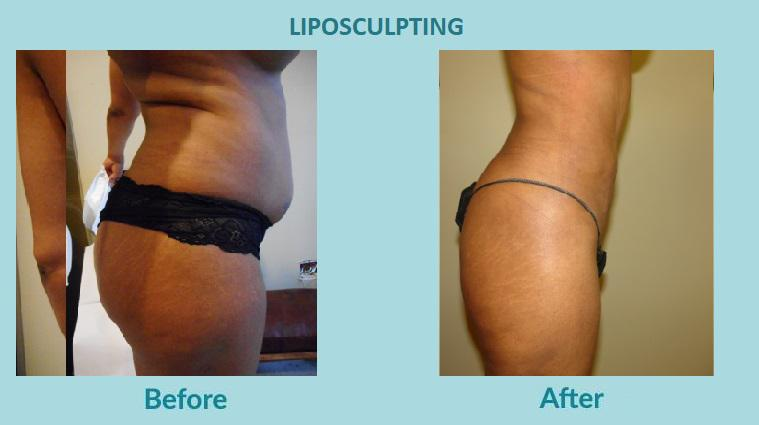 Gallery image about before & after - LIPOSCULPTING