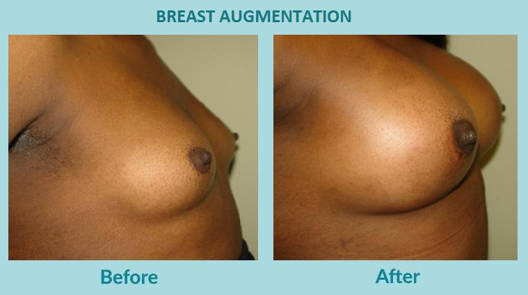 Gallery image about Before & After – Breast Augmentation