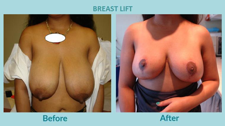Gallery image about Before & After - Breast Lift