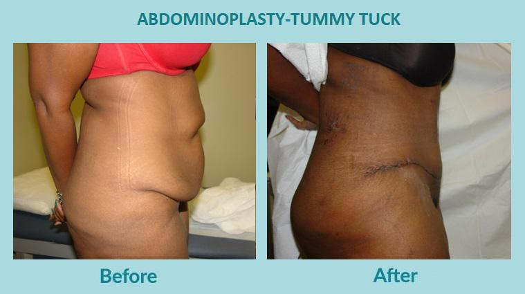 Gallery image about BEFORE & AFTER - ABDOMINOPLASTY-TUMMY TUCK