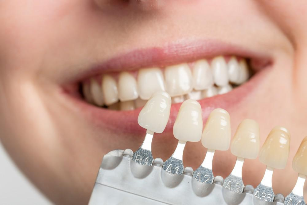 5 Ways Veneers Can Improve Your Smile: Strauss Dental: Comprehensive Family  Dentistry
