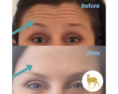 Gallery image about botox - Before & After