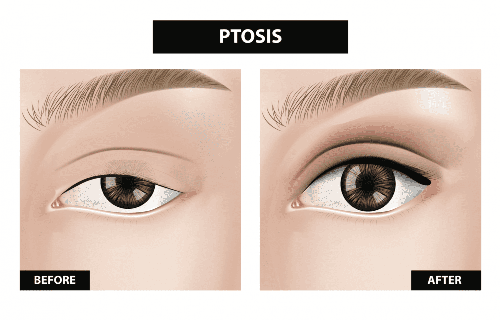 ptosis before & after illustration