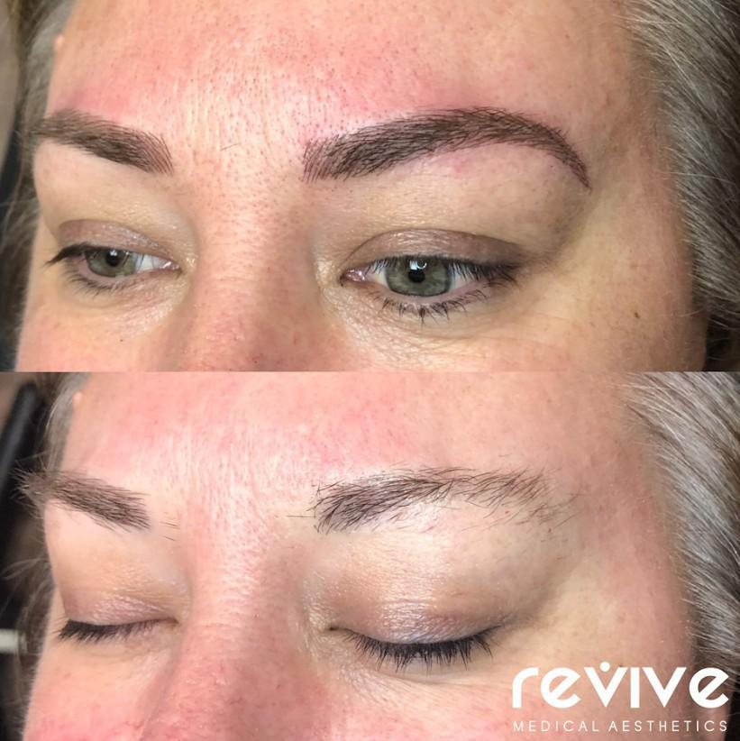 Gallery image about Microblading gallery