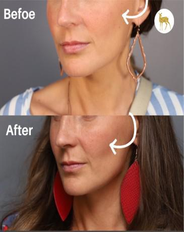 Gallery image about Before & After Cheek Filler