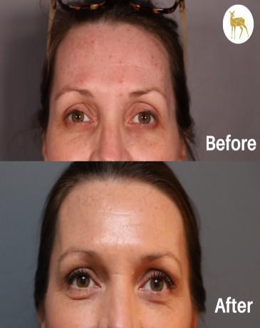 Gallery image about Before & After Radio-Frequency Laser