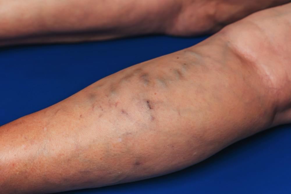 Phlebitis - Image