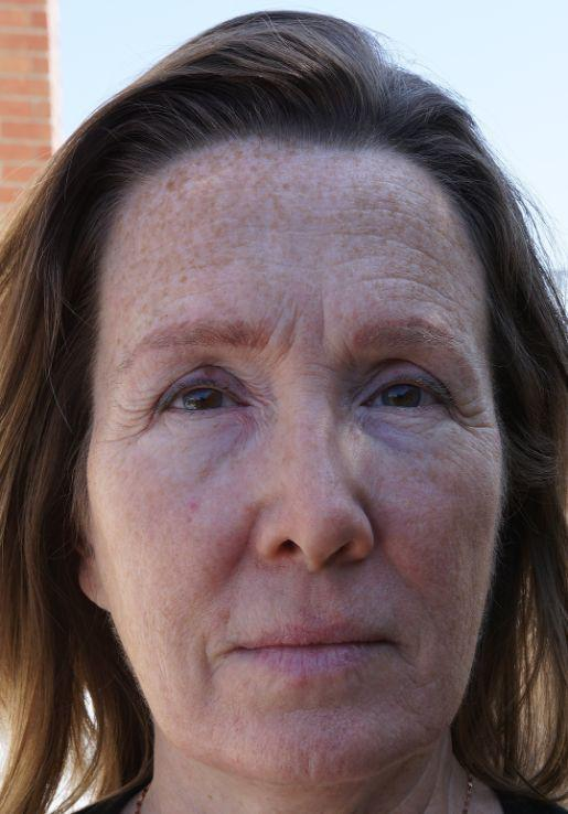 Gallery image about Skin Rejuvenation Before and After Patient 2