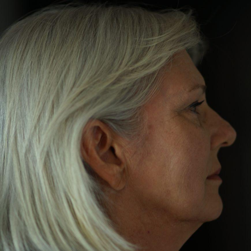 Gallery image about Skin Rejuvenation Before and After Patient 4