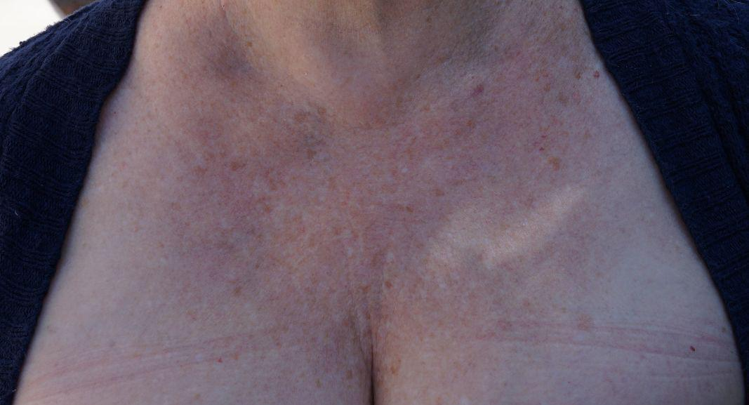 Gallery image about Skin Rejuvenation Before and After Patient 5