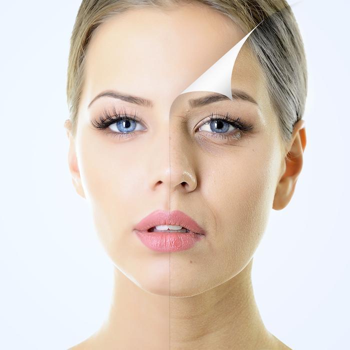 woman skin peel