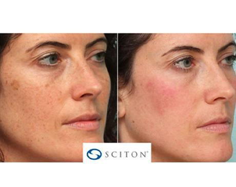 Gallery image about Halo Fractional Laser Before & After