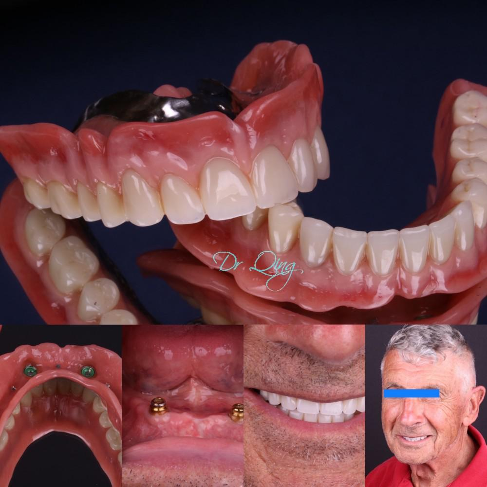 Dental implant overdenture ( snap on denture)