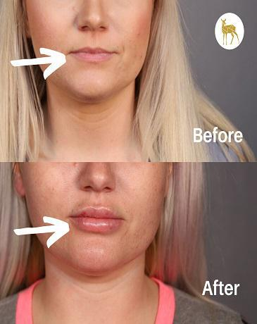 Gallery image about Before & After  Lip Filler