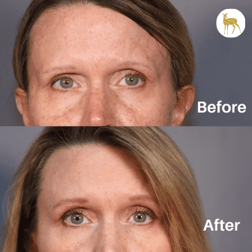 Gallery image about Before & After Microneedling