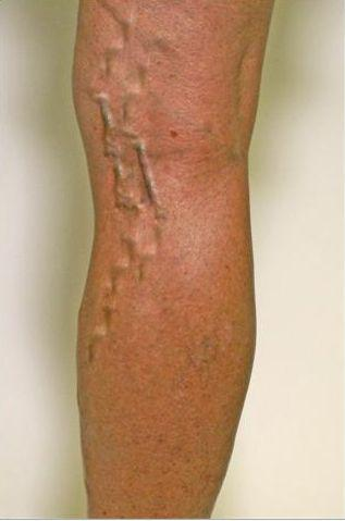 Gallery image about Varicose Veins