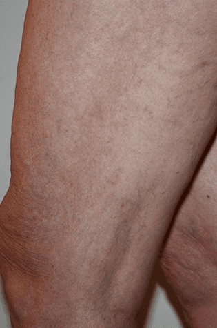 Gallery image about Spider Veins