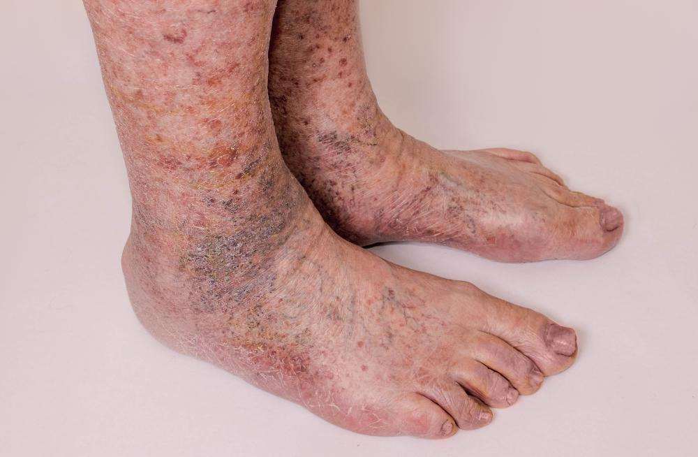 Blog - Ankle Discoloration - What is Stasis Dermatitis ...