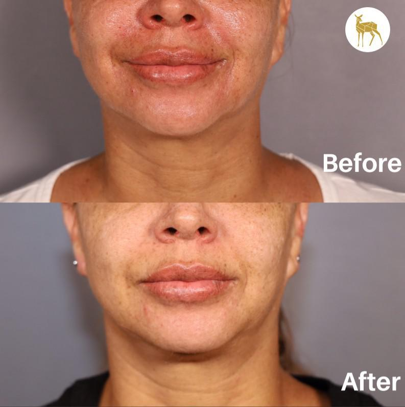 Gallery image about Before and After  -  Large Pore