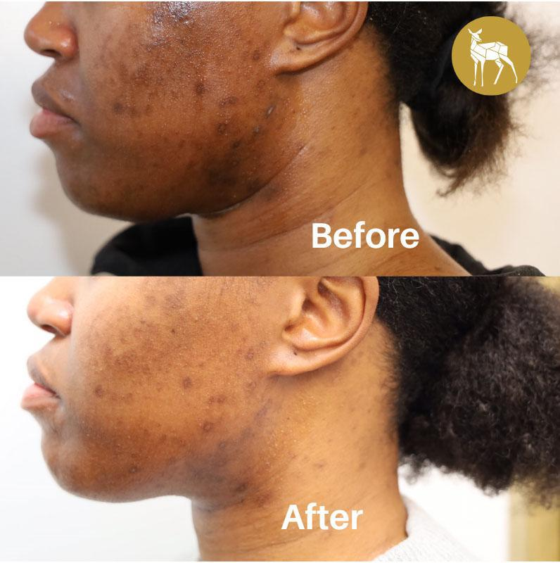 Gallery image about before and after - hyperpigmentation-solution
