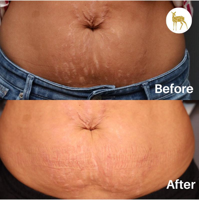 Gallery image about Before & After - Stretchmarks-Skin concerns and solutions