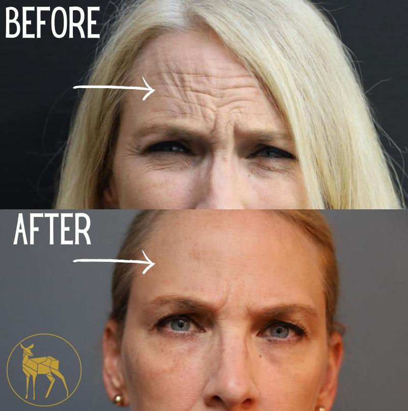 Gallery image about BEFORE AND AFTER - WRINKLE SOLUTION