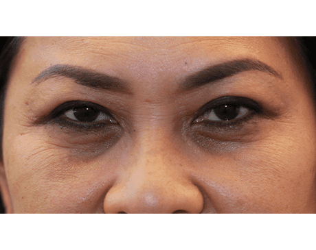 Gallery image about Asian Blepharoplasty