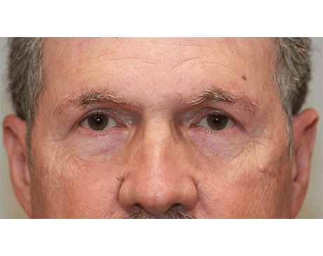 Gallery image about Brow Lift