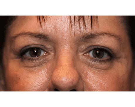 Gallery image about Lower Eyelid Blepharoplasty