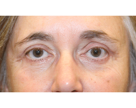 Gallery image about Lower Eyelid Blepharoplasty with Fat Grafting