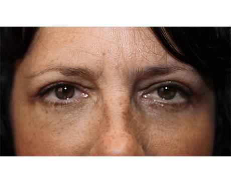 Gallery image about Upper Eyelid Blepharoplasty