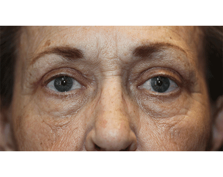 Gallery image about Upper Eyelid Ptosis - Mullerectomy
